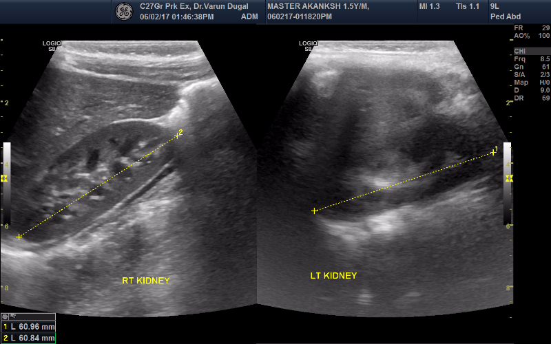 Guest Post III - Micturating cystourethrogram using trans-perenial